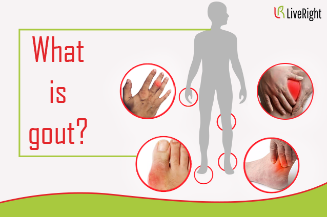 What is Gout?- Part 1
