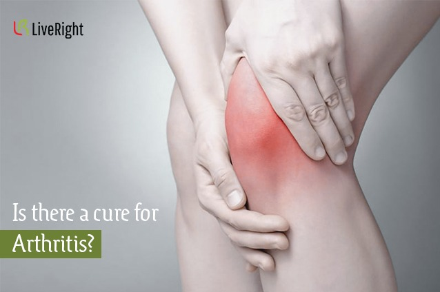 Is there a cure for Arthritis?